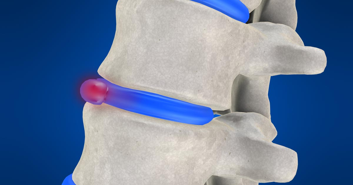 Selden and Coram, NY non-surgical disc herniation treatment